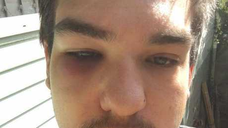 Sippy Downs resident Dakoda Kays shows his facial injuries about a day after being assaulted in a Mooloolaba car park in the early hours of January 17.
