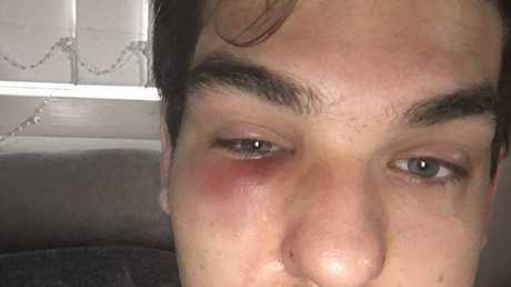 Sippy Downs resident Dakoda Kays shows his facial injuries about half a day after being assaulted in a Mooloolaba car park in the early hours of January 17.