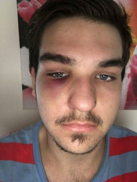 Sippy Downs resident Dakoda Kays shows his facial injuries about a day-and-a-half after being assaulted in a Mooloolaba car park in the early hours of January 17.