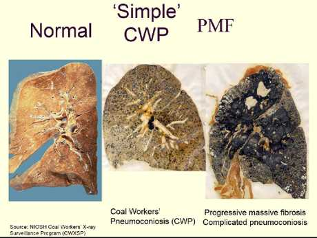 Black lung is and ongoing issue.