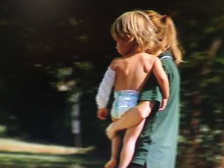 A mother holds a toddler bitten after picking up a snake in the Lockyer Valley.