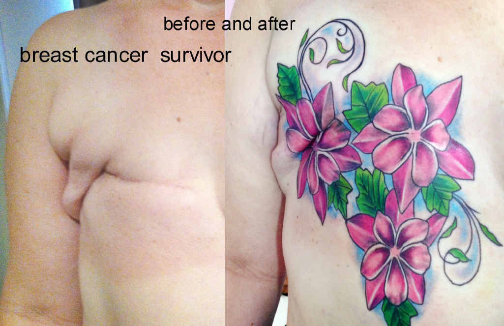HEALING PROCESS: Before and after of a mastectomy scar cover up Susan has done.