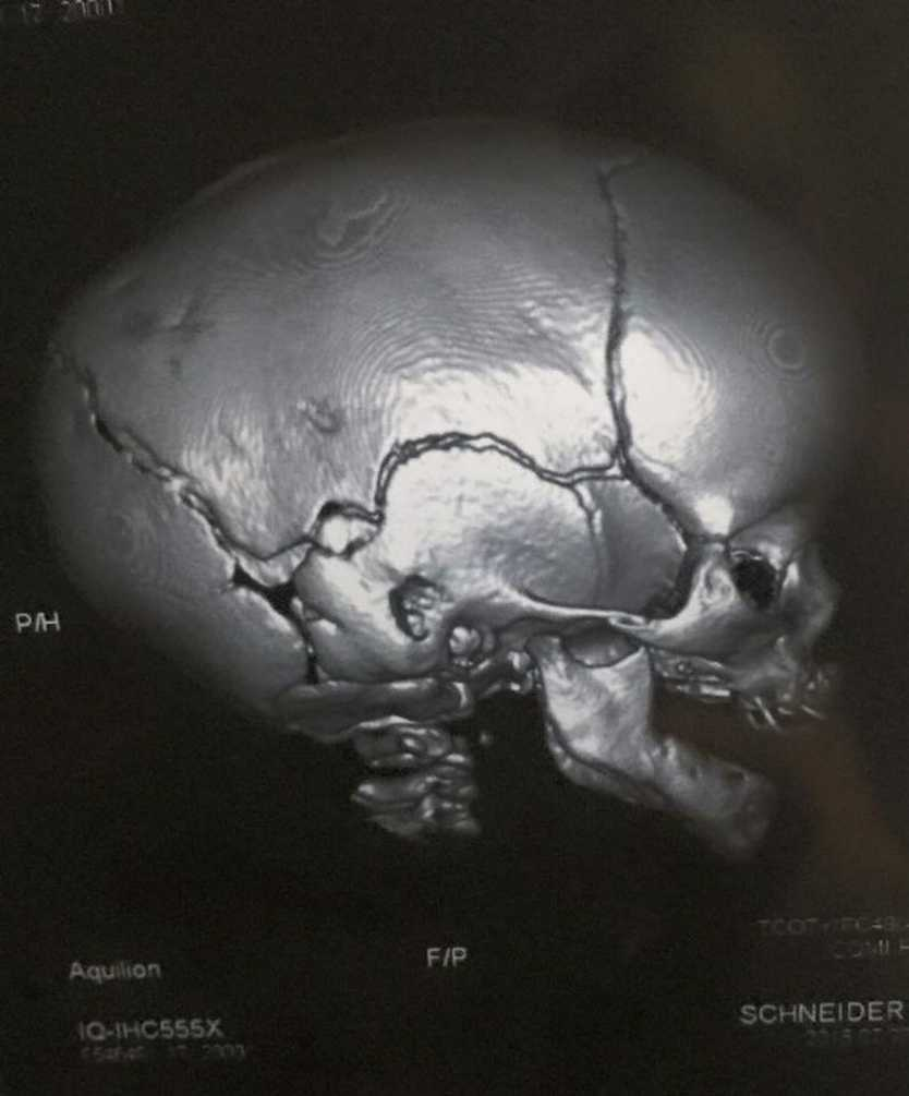 Scan image of Laythen Schneider's skull before surgery Photo: Contributed