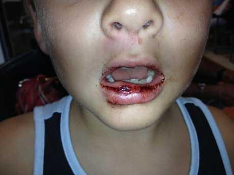Bailey with his split lip.