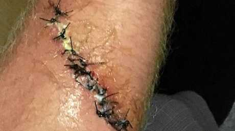 ROBBIE Sherwell's forearm with 13 stitches from a deep cut while surfing in the Mentawi Islands of Indonesia