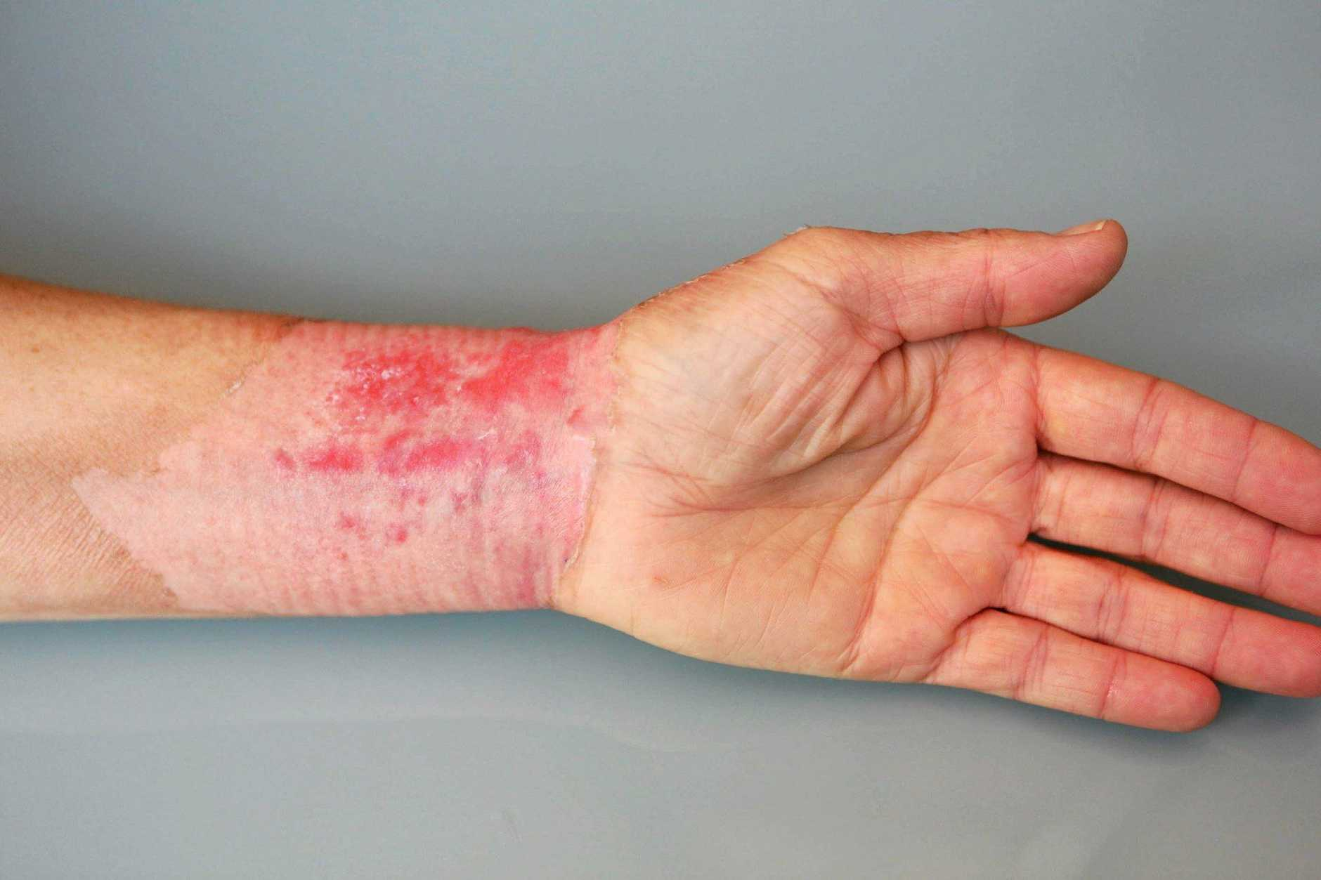 The second-degree burns Ms Lacy suffered to her arm.