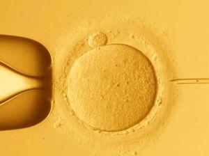 IVF pregnancies
