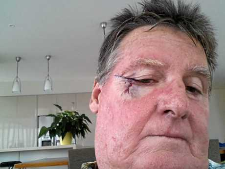 Peter McWhinney has had more skin cancers than he can count, including one at the corner of his eye.