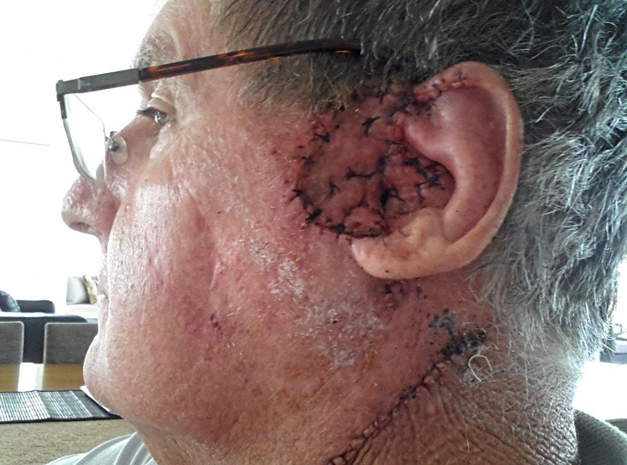 Peter McWhinney,  of Pelican Waters, with the stitches left after skin cancers  were removed from his ear and neck.