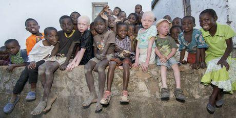 Albino children in Malawi. Photo: Amnesty International