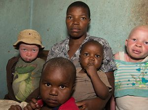 The albino children being killed and sold for body parts