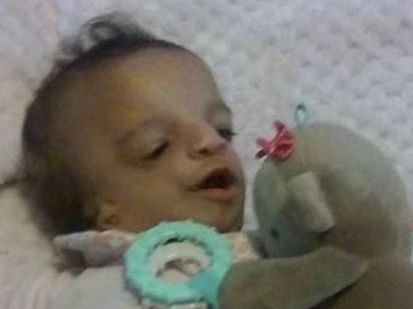 Little Abigail Lynn was born with Treacher Collins Syndrome, which affects the development of the facial bones and tissues. Photo / Facebook, Christina Fisher