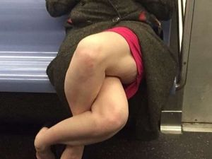 Why this woman's legs make people uncomfortable