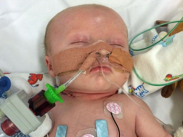 LITTLE FIGHTER: Lincoln Elwell lost his battle with a rare disease in April.