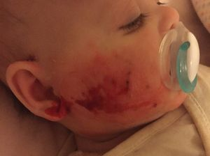 Baby with painful skin condition faces long wait for help