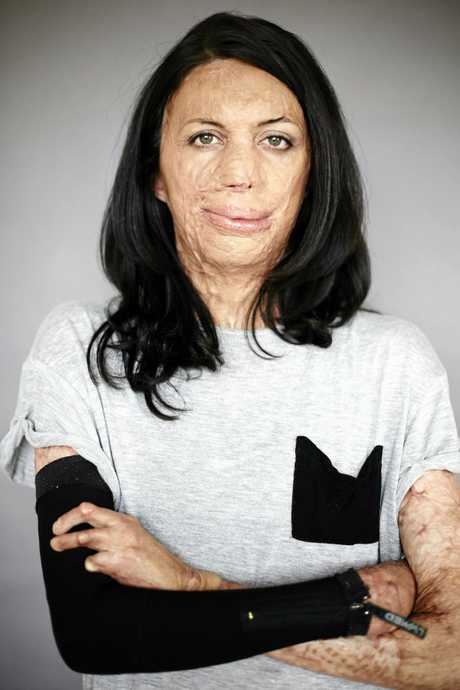 Inspiration speaker and athlete Turia Pitt.