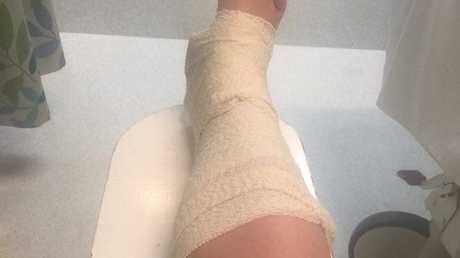 Stevie Burscough damaged ligaments in her ankle.