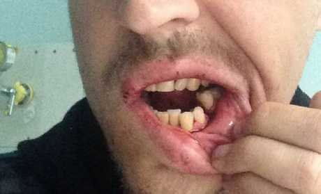The aftermath of a brutal coward punch in a Toowoomba pub on Saturday night.