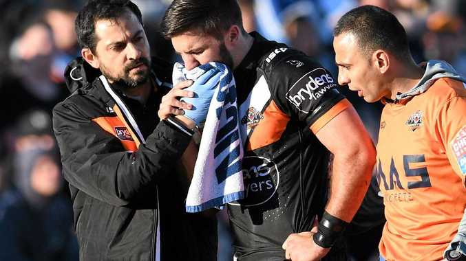 CRUEL BLOW: James Tedesco for the Tigers is bloodied and injured.