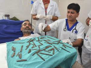 Man has 40 knives removed from stomach