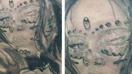 Photos that show extensive scarring in and around a Toowoomba woman's tattoo.