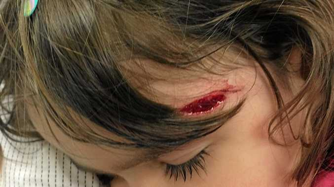 Nanette Bingham's daughter suffered a nasty gash from Hungry Jack's Morayfield playground.