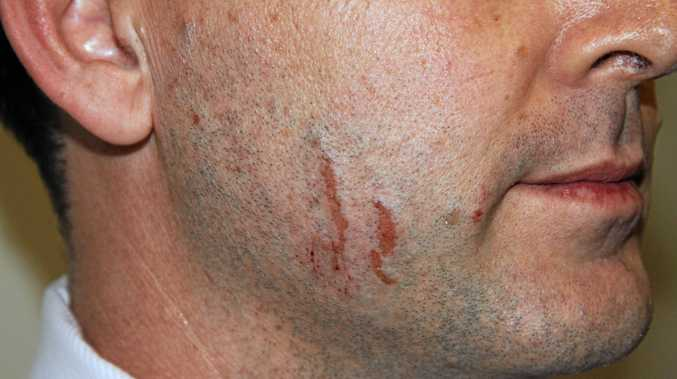 Police photographs of marks on Gerard Baden-Clay's skin used as evidence in court. Photo: Contributed