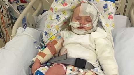 BATTLING BUB: Yuleba infant Matthew Russell is recovering in the Lady CIlento Hospital, after he suffered third-degree burns to 18% of his body in a freak accident.
