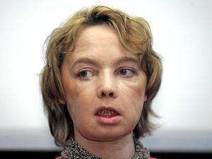 First face transplant patient dies
