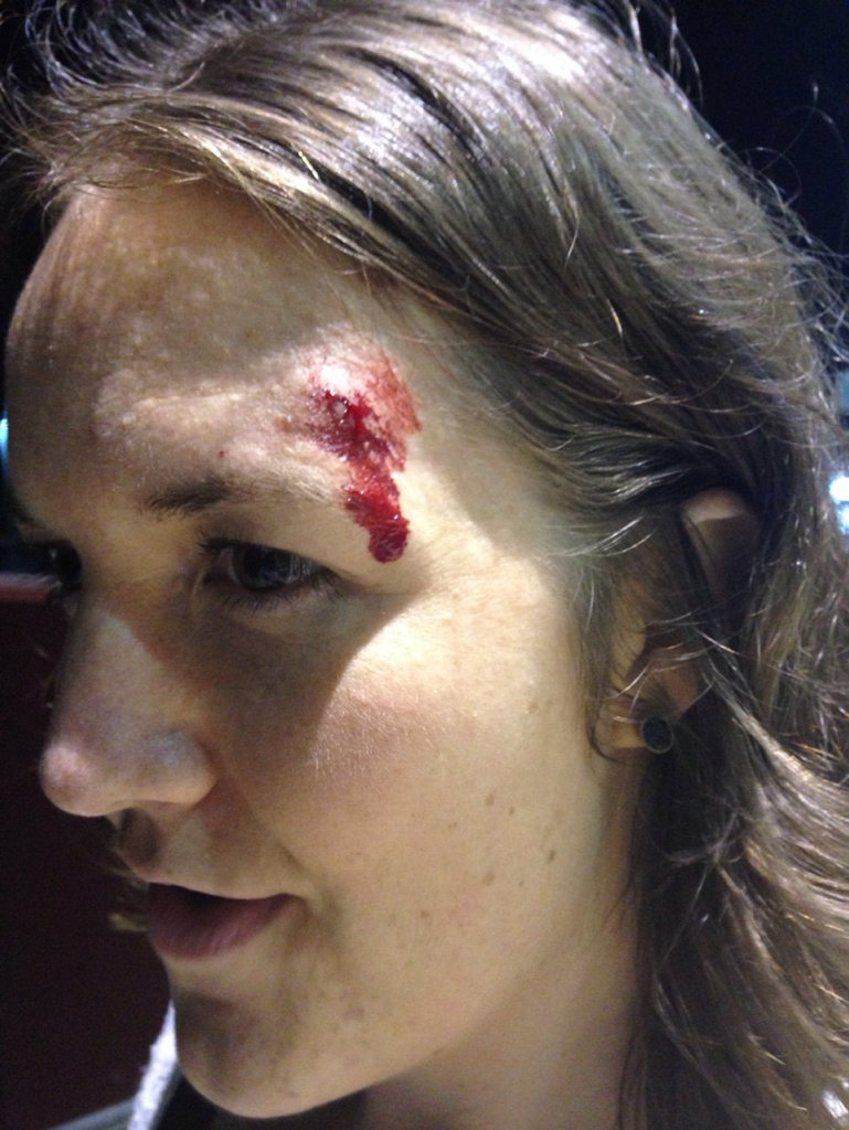 Cassie Holeczy after getting caught up in the cross fire of an 'out of control crowd'.