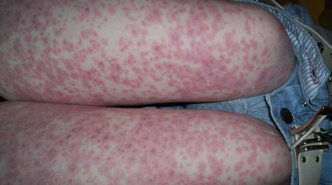 Meningococcal, which causes a red rash, has been reported in the Whitsundays.