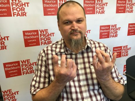Dean Reid lost his ring fingers on both hands and his right thumb when industrial rollers he was working with closed on him in May last year.