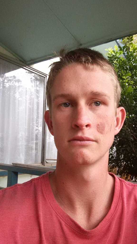 Gavin Bartkowski, 22, has spoken out for road safety after a three-vehicle crash on the Warrego Hwy on Sunday.