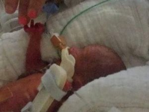Miracle baby thriving after being born at 25 weeks