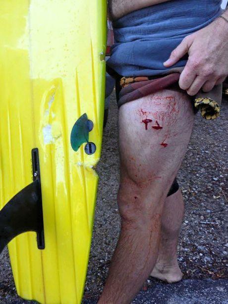 Shark attack victim and board  at  broken Head this morning.