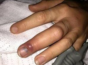 SNAKE BITE: A woman was bitten on the finger after disturbing a snake behind a laundry basket.