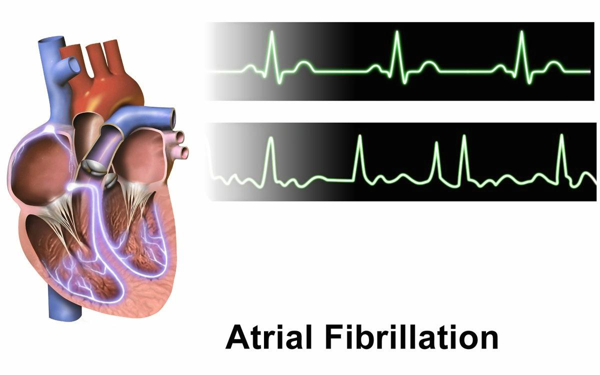 Normal rhythm tracing (top) and atrial fibrillation (bottom).