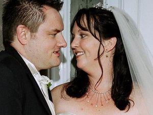 Wedding photos revealed bride's skin cancer