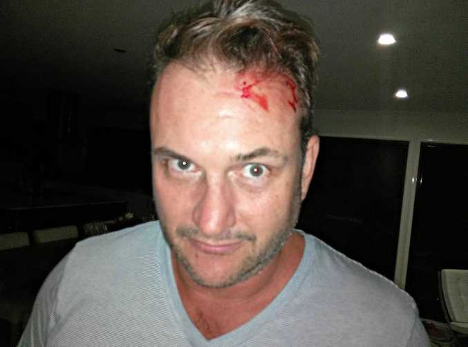 Doonan resident Marshall Styles was struck on the forehead by a python after returning home on Saturday night.