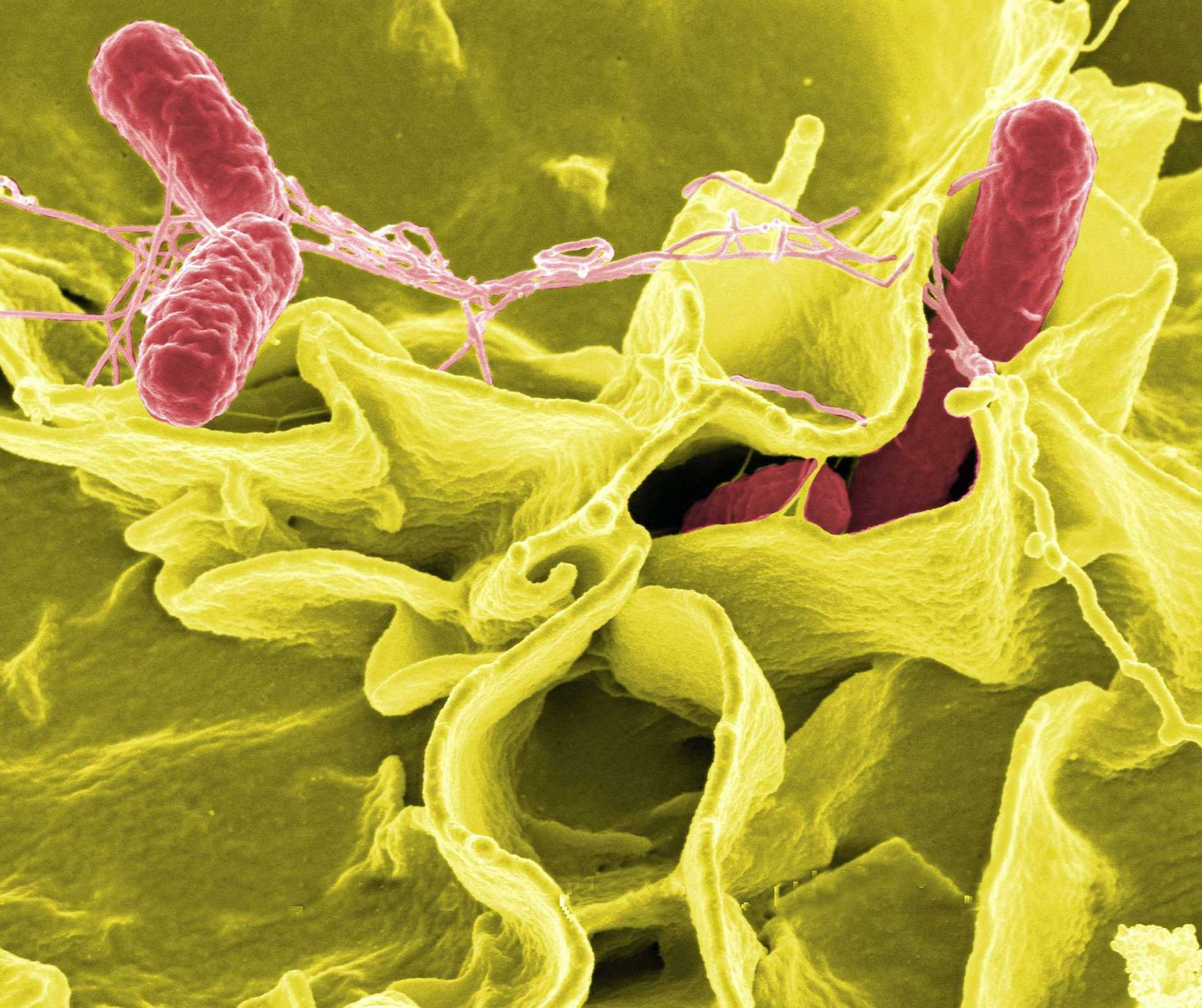 Colour-enhanced scanning electron micrograph showing Salmonella typhimurium (red) invading cultured human cells.