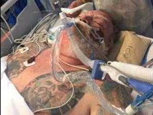 Family's ordeal as scooter crash victim fights for life