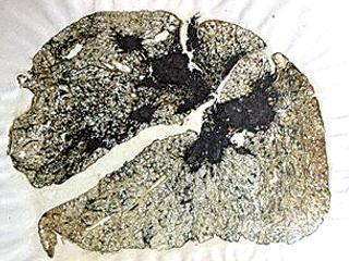 Section of a coal worker's lung showing black lung disease with progressive massive fibrosis.