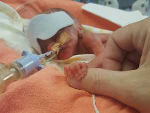 Colby Neil Malone was born at 21 weeks and has had four operations in three weeks.