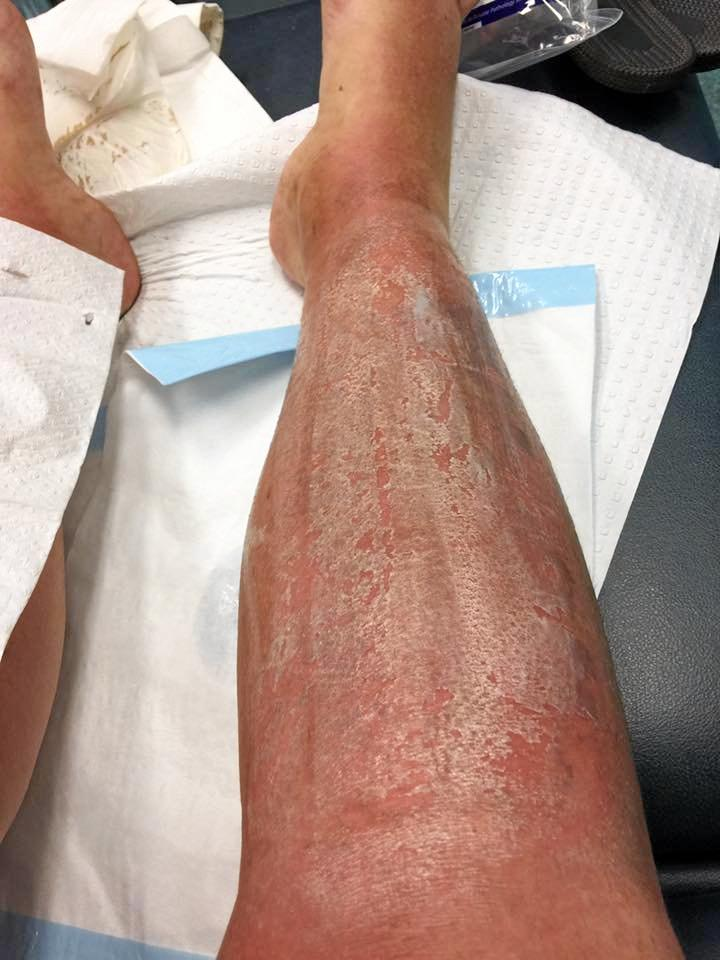 SUN CAUSES THIRD DEGREE BURN: Sasha Cook's legs after spending five hours outdoors.