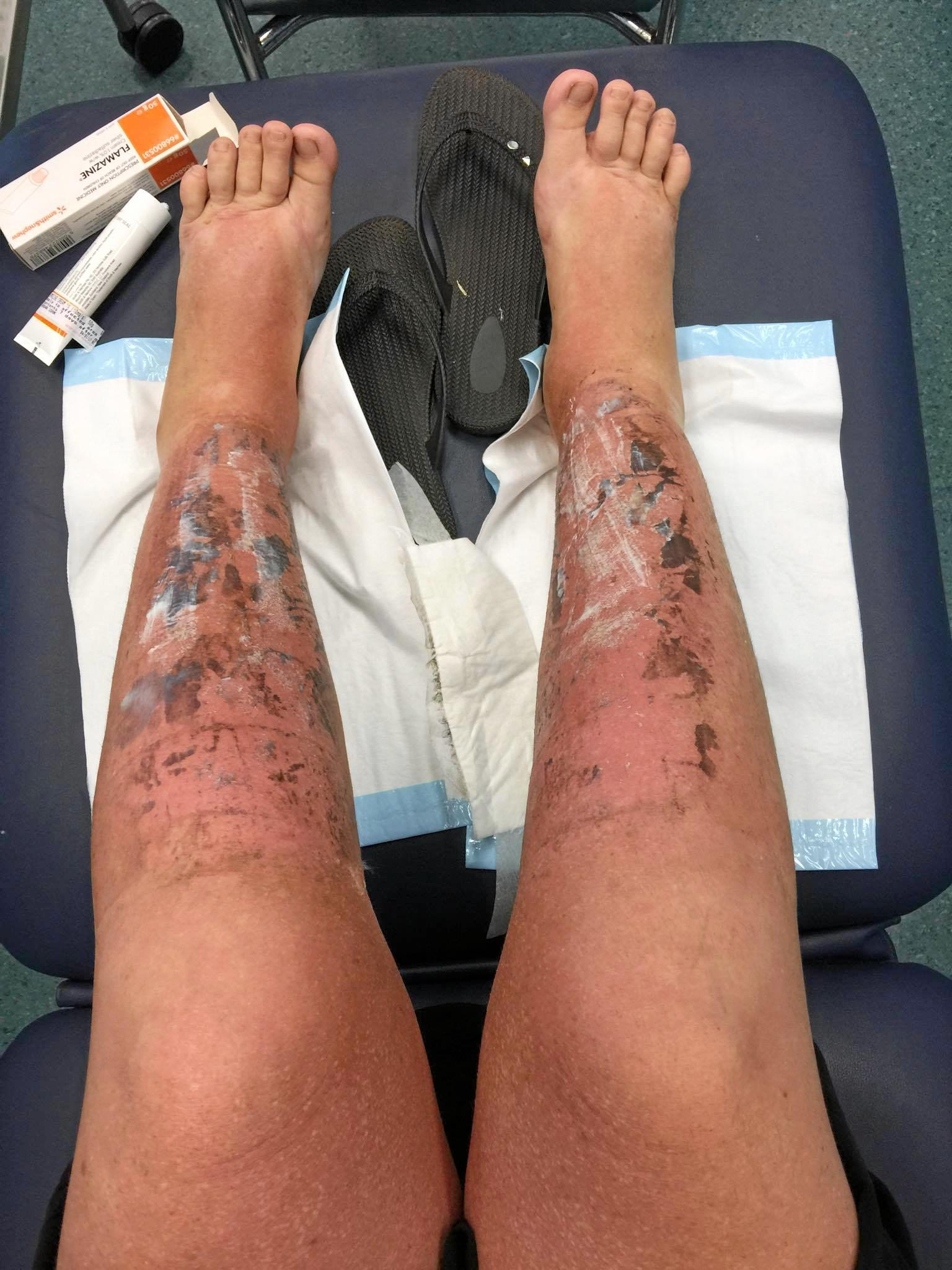 SUN CAUSES THIRD DEGREE BURN: On the way to healing - Sasha Cook's legs three days after beginning treatment.