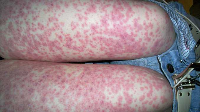 WARNING SIGNS: A rash is one of the symptoms of meningococcal.