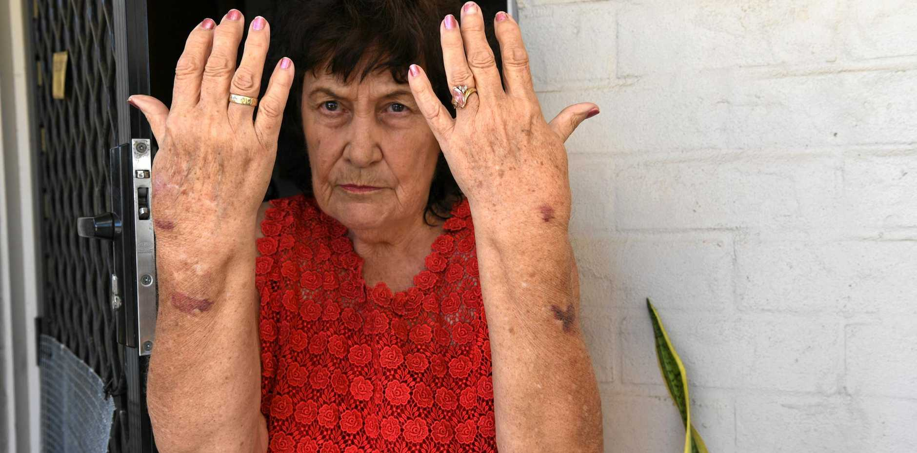 KILLER DOGS: Ruth VonBulow-Bauer was attacked by dogs on her front verandah. The dogs had just killed her cat Lockie.