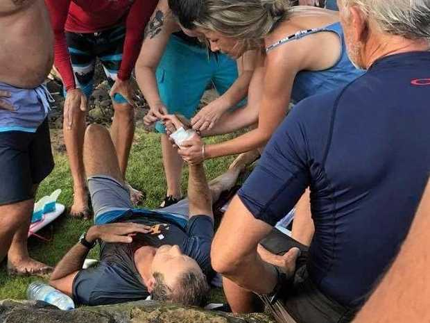 Noosa paramedic Dan Moore lies on the beach at Balian in Bali after being attacked by a shark.