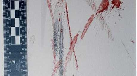 Blood smears on the children's wall.