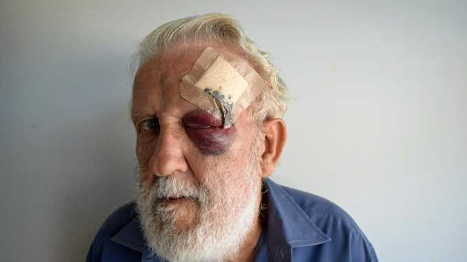 BATTERED: Ken Whiteland was the victim of a brutal assault in his home.